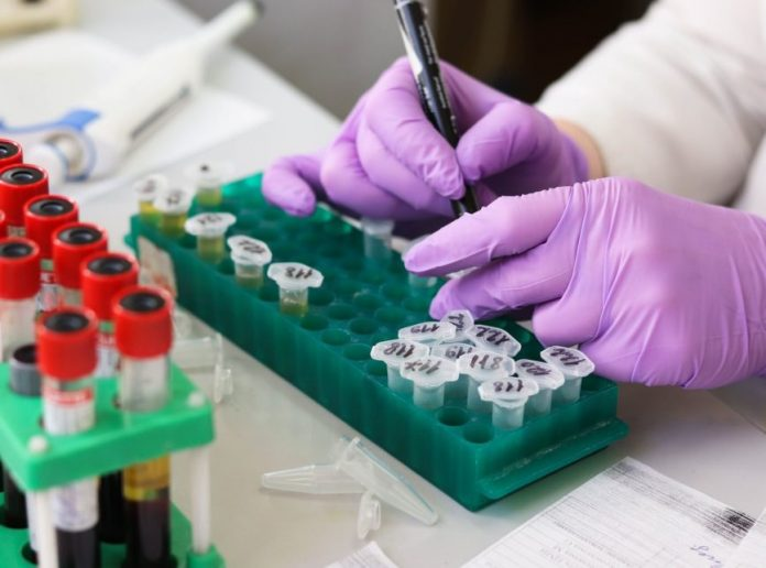 Governo entrega kits incompletos para testes de covid-19